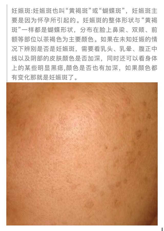 QQ图片20210325153156_04